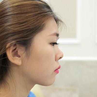 Khách hàng Thu Trang trước và sau nâng mũi