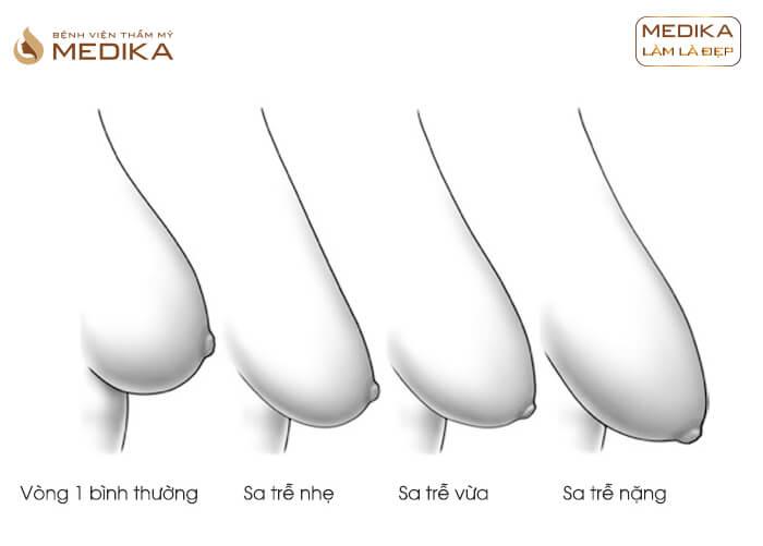 Các giai đoạn nâng ngực chảy xệ ở bệnh viện thẩm mỹ MEDIKA