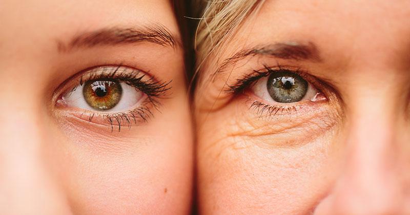 Đôi mắt bị lão hóa theo thời gian -MEDIKA