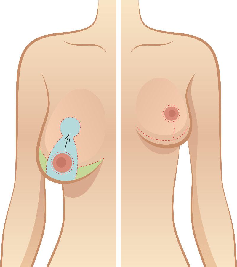 Phẫu thuật nâng vòng 1 chảy xệ sau sinh