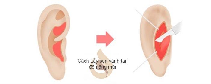 Bác sĩ tạo vết rạch trong lỗ mũi bóc tách khoang mũi, cấy ghép sụn để nâng cao sống mũi.