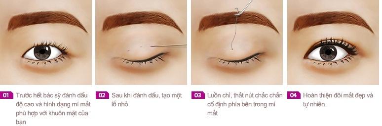 bấm mí mắt giữ được bao lâu