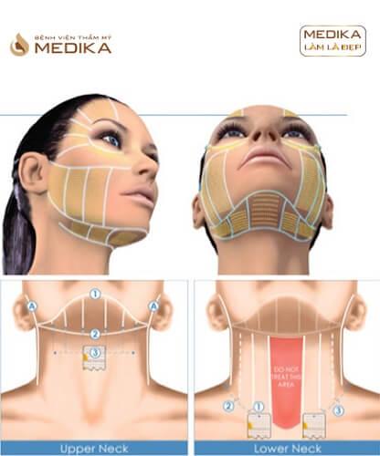 Các vị trí Căng da bằng chỉ Diamond 3D ở Bệnh viện thẩm mỹ MEDIKA.vn
