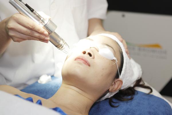 Điều trị sẹo rỗ bằng công nghệ Laser Fractional CO2