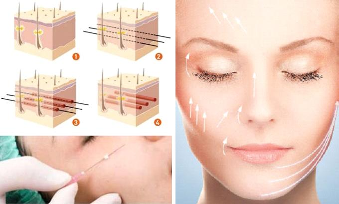 Bất ngờ với công nghệ làm căng da mặt bằng chỉ tại MEDIKA