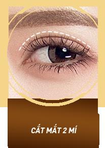 Cắt mắt 2 mí M-Plasty