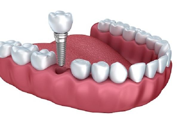 Kỹ thuật cấy ghép Implant - giải pháp tối ưu cho những trường hợp cần thay thế cho răng mất