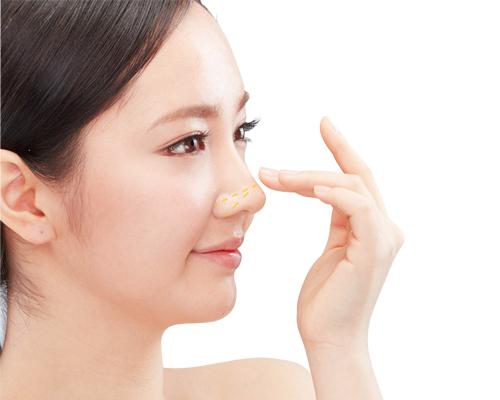 Chăm sóc sau nâng mũi thẩm mỹ tại MEDIKA