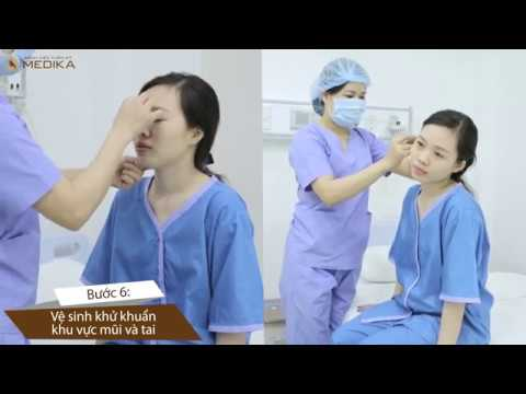 chăm sóc tai sau nâng mũi bằng sụn tai