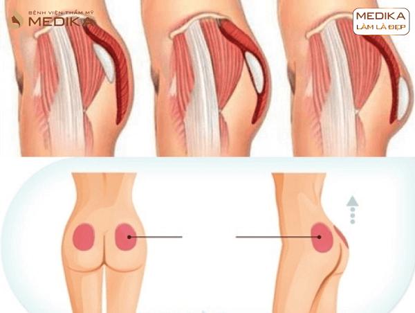 Chụp cắt lớp Nâng vòng 3 bơm mông độn mông ở Bệnh viện thẩm mỹ MEDIKA