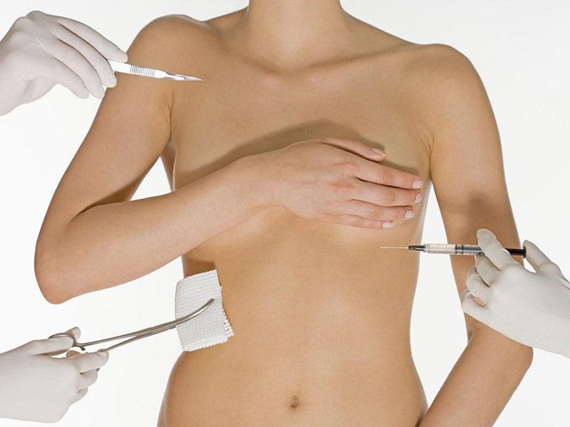 Có nên phẫu thuật nâng vòng 1 chảy xệ không?