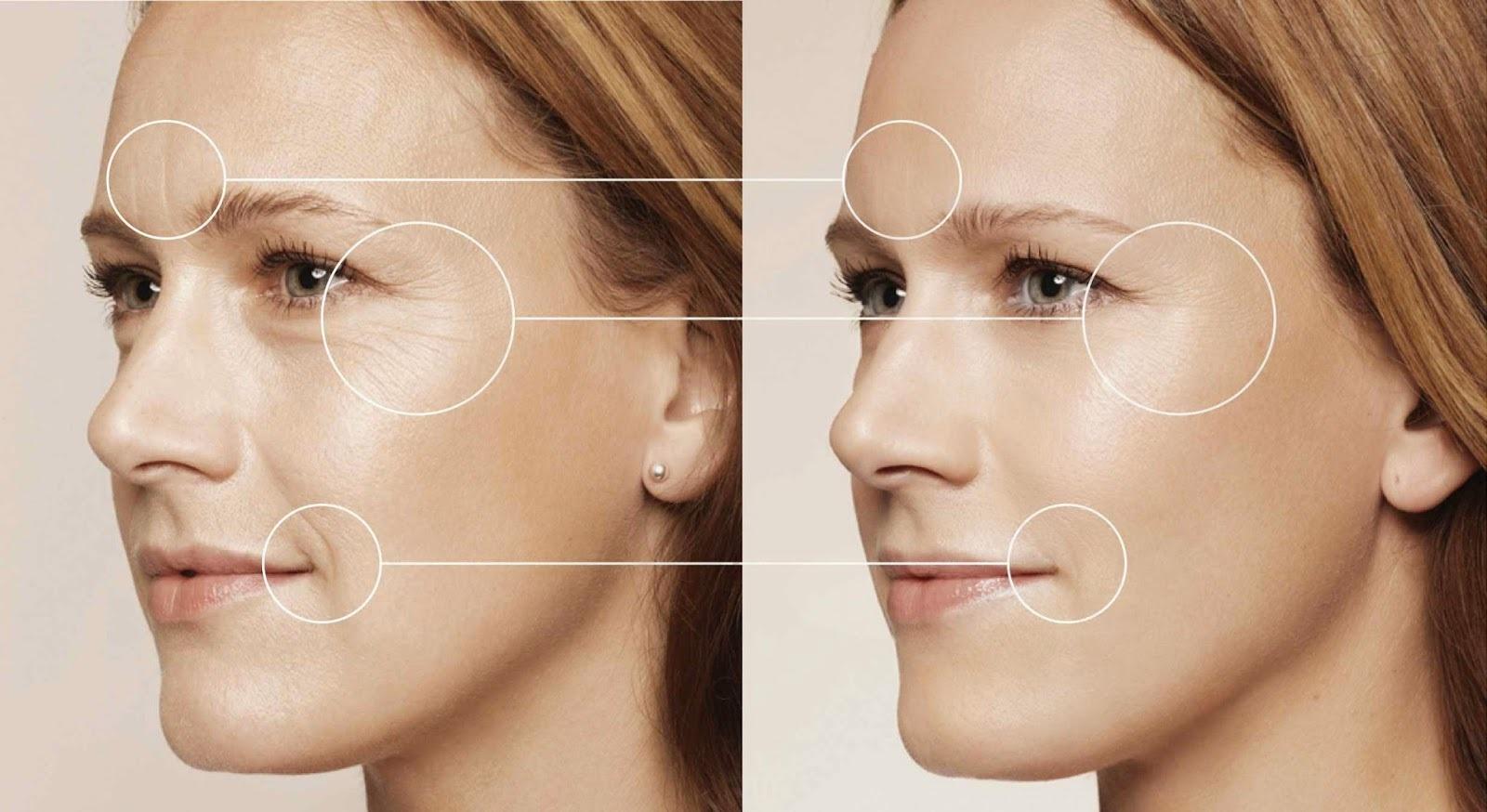 điều trị da bằng spectra laser