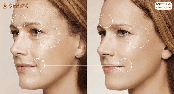 Điều trị da bằng Spectra Laser hiệu quả ở Bệnh viện thẩm mỹ MEDIKA