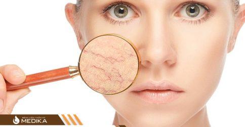 Điều trị giãn mao mạch bằng Laser Gold