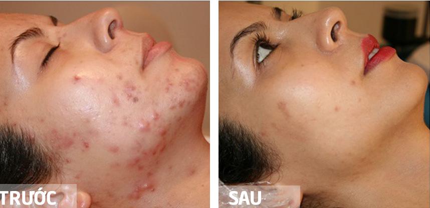 Tùy vào tình trạng da và mức độ mụn của bạn