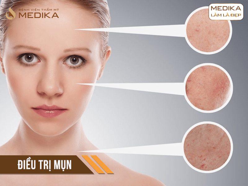 Điều trị mụn cơ bản các vùng da ở Bệnh viện thẩm mỹ MEDIKA