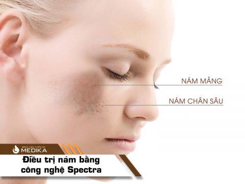 Điều trị nám bằng công nghệ Laser Spectra