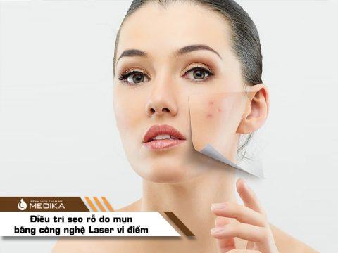 Điều trị sẹo rỗ do mụn bằng Laser vi điểm
