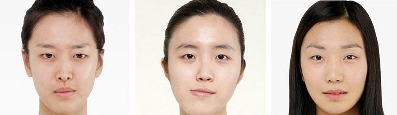 đối tượng bấm mí mắt đa điểm Hàn Quốc