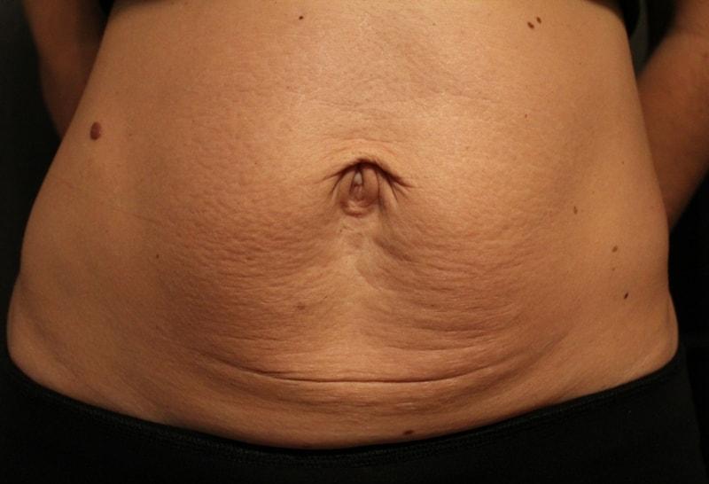 Đối tượng nên thực hiện tạo hình thành bụng