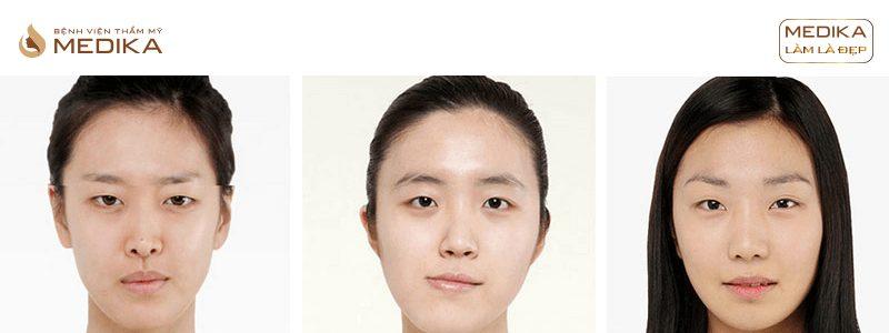 Hình ảnh Bấm mí mắt đa điểm Hàn Quốc ở Bệnh viện thẩm mỹ MEDIKA