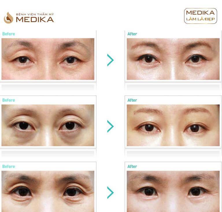 Hình ảnh Xóa quầng thâm mắt và làm đầy hốc mắt sâu ở Bệnh viện thẩm mỹ MEDIKA