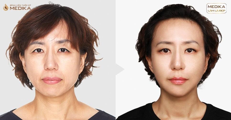 Kết quả căng da bằng chỉ Diamond - MEDIKA.vn