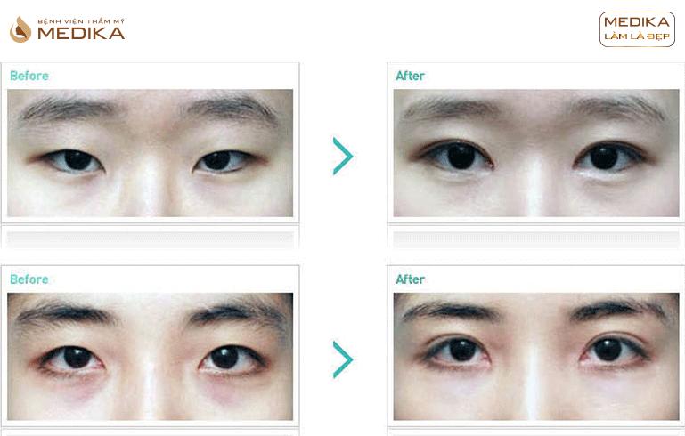 Kết quả Cắt mắt 2 mí M Plasty ở Bệnh viện thẩm mỹ MEDIKA