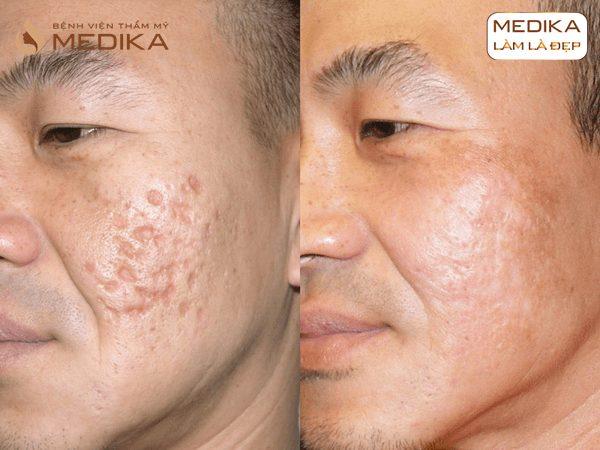 Kết quả Điều trị sẹo rỗ do mụn bằng Laser vi điểm ở Bệnh viện thẩm mỹ MEDIKA