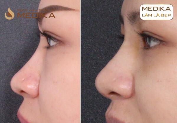 Kết quả Tiêm Filler mũi Nâng mũi không phẫu thuật bằng Filler ở Bệnh viện thẩm mỹ MEDIKA