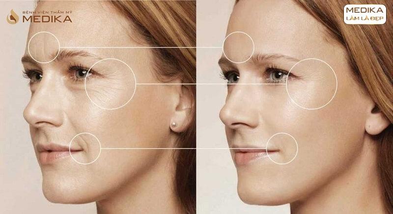 Kết quả Xóa nhăn bằng Filler Botox ở Bệnh viện thẩm mỹ MEDIKA