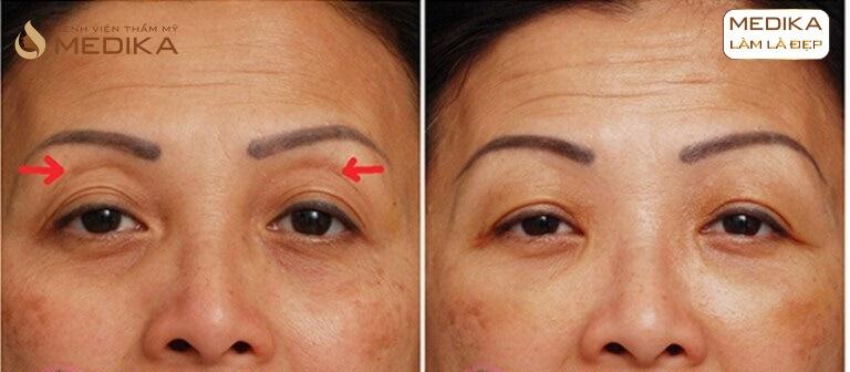 Kết quả Xóa quầng thâm mắt và làm đầy hốc mắt sâu ở Bệnh viện thẩm mỹ MEDIKA
