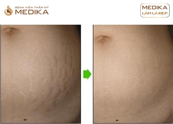 Kết quả Xóa rạn da bằng công nghệ Fractional ở Bệnh viện thẩm mỹ MEDIKA