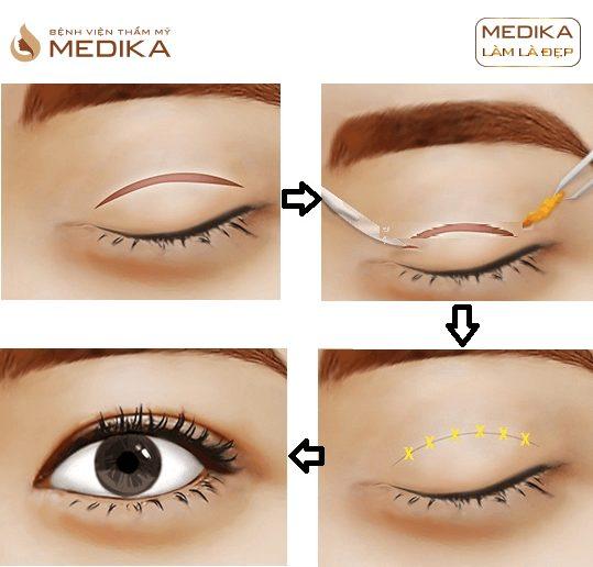 Kỹ thuật Cắt mắt 2 mí cắt mí mắt tạo hình mắt đẹp ở Bệnh viện thẩm mỹ MEDIKA
