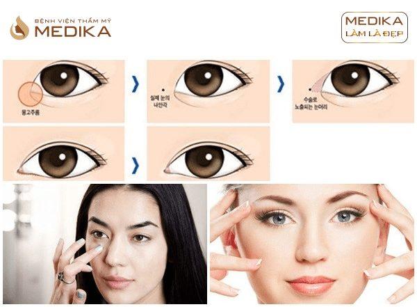 Kỹ thuật Mắt to tròn Barbie Eyes ở Bệnh viện thẩm mỹ MEDIKA