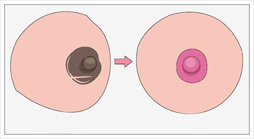 Phương pháp phun hồng nhũ hoa có hại không?
