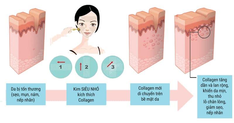 lăn kim tế bào gốc