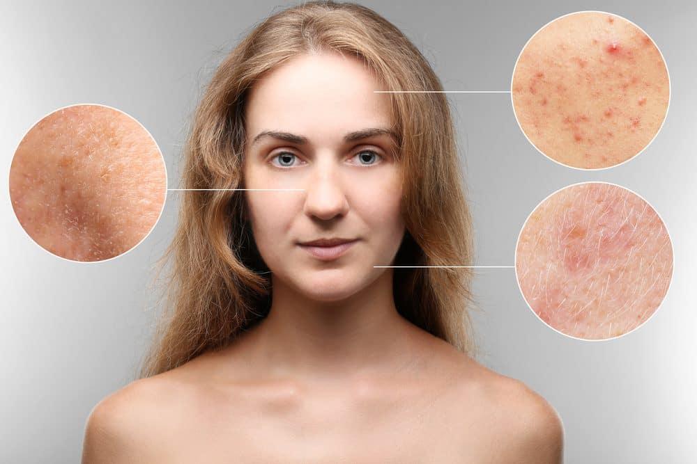 Lăn kim tế bào gốc có hiệu quả không?