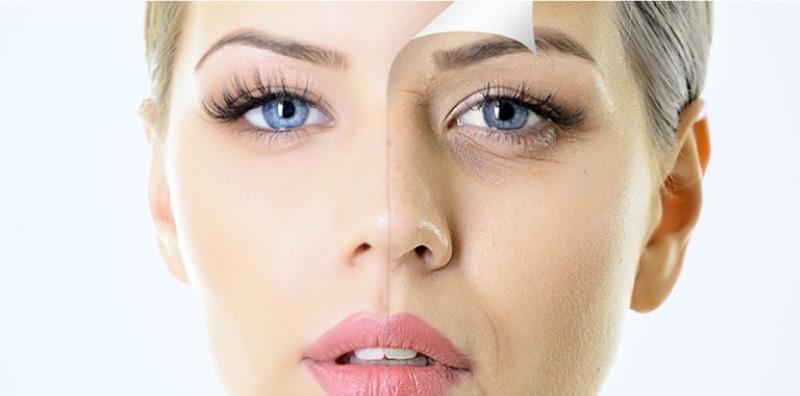 Bọng mắt cũng là một trong những đặc điểm di truyền