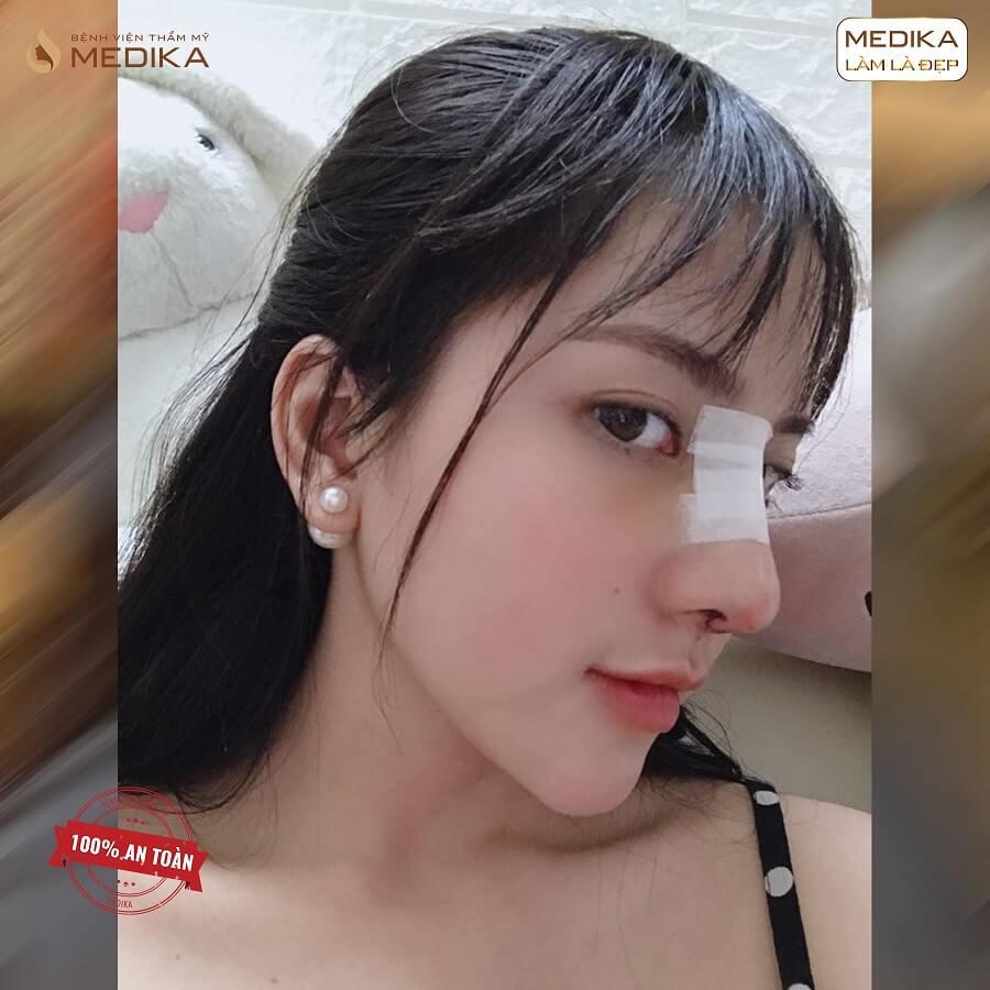 Mẫu ảnh nâng mũi bằng sụn sườn - Bệnh viện thẩm mỹ MEDIKA