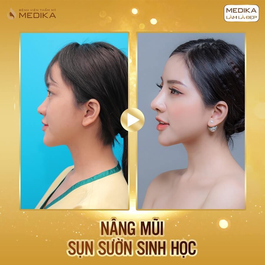 Mẫu ảnh nâng mũi sụn sườn sinh học - MEDIKA.vn