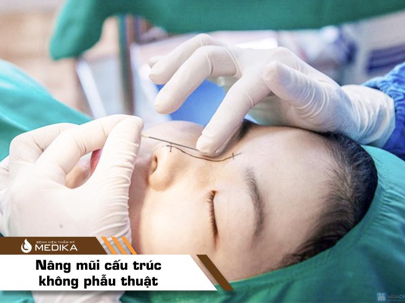 Nâng mũi cấu trúc không phẫu thuật bằng chỉ Diamond tại bệnh viện thẩm mỹ MEDIKA