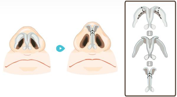 Sóng mũi được nâng cao, đầu mũi được thu gọn
