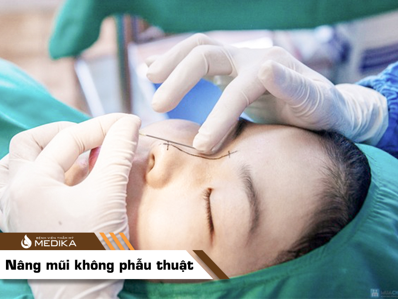 Nâng mũi không phẫu thuật bằng chỉ Diamond  tại Bệnh viện thẩm mỹ MEDIKA