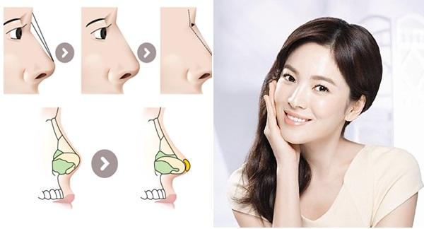 Kỹ thuật nâng mũi hiện đại hạn chế được sưng tấy và đau đớn