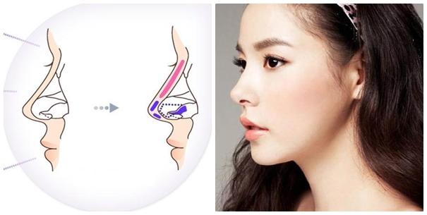 Nâng mũi bằng sụn tự thân cho hiệu quả thẩm mỹ cao