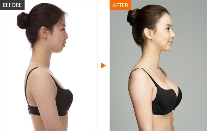 Quy trình nâng ngực đạt chuẩn trong bệnh viện