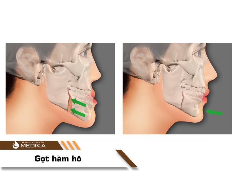 Phẫu thuật hàm hô MEDIKA
