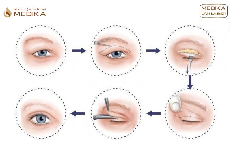 Phẫu thuật Lấy mỡ mí mắt trên ở Bệnh viện thẩm mỹ MEDIKA