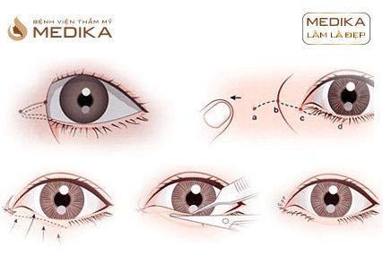 Phẫu thuật Mở rộng góc mắt trong ở bệnh viện thẩm mỹ MEDIKA